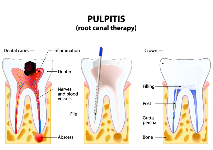 rootcanaltherapy