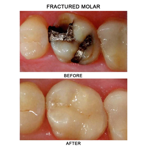 before-after-crown-fractured-molar
