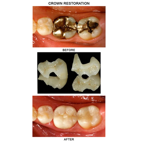 before-after-crown-restoration