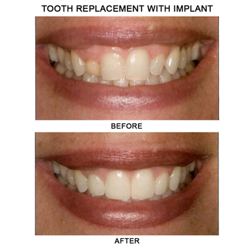 before-after-implant
