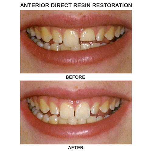 before-after-resin-restoration