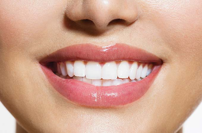 crown-lengthening-mouth-only