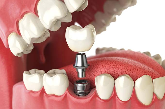 dental-implant-open-jaw