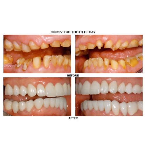 before-after-gingivitis