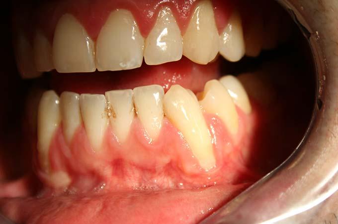 example-gum-graft-surgery-recessionigengivali